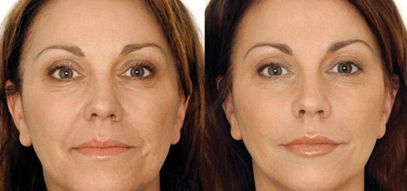 XYZ-Collagen-Before-After