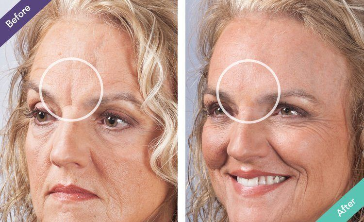 Smart-Collagen-before-after-pictures