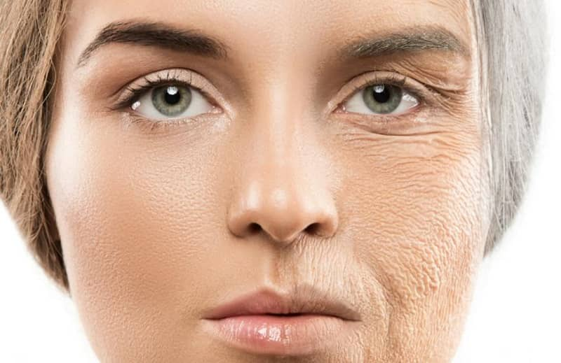 Causes of Anti Aging